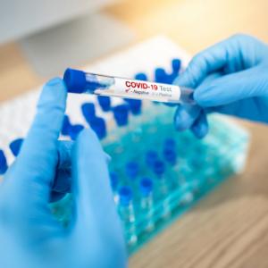 Test de antigenos covid-19