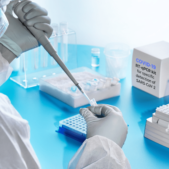 test-antigenos-covid19